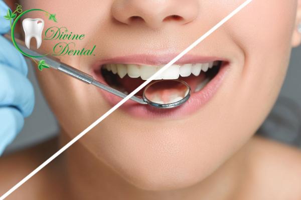 Scottsdale Teeth Whitening